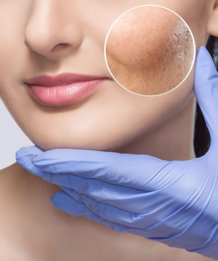 How Is Acne Scarring Treated
