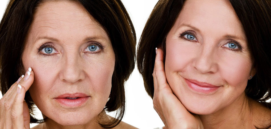 New Advanced Anti Ageing Laser Technology