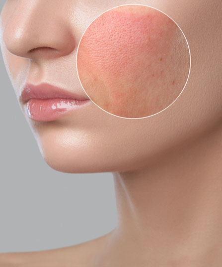 Rosacea Laser Treatment Melbourne Img 1