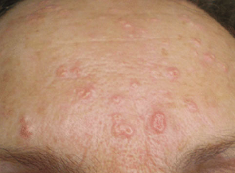 Sebaceous Hyperplasia Img 1