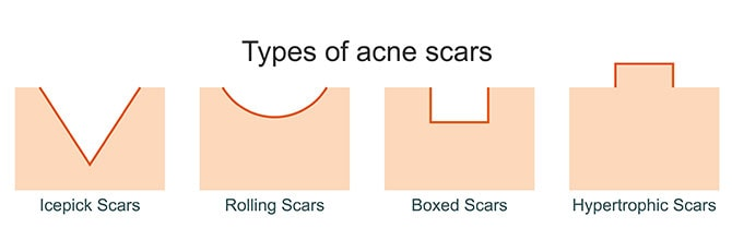 Types Of Textural Scars