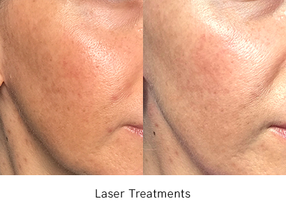 Laser Treatments Before After